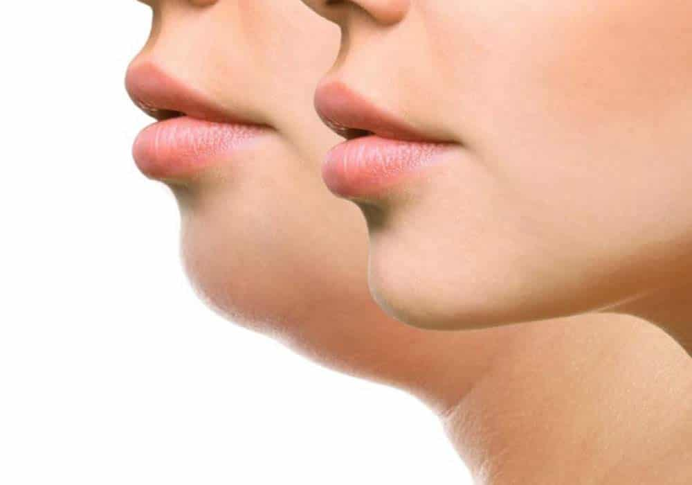Coolslimming for fat reduction under chin
