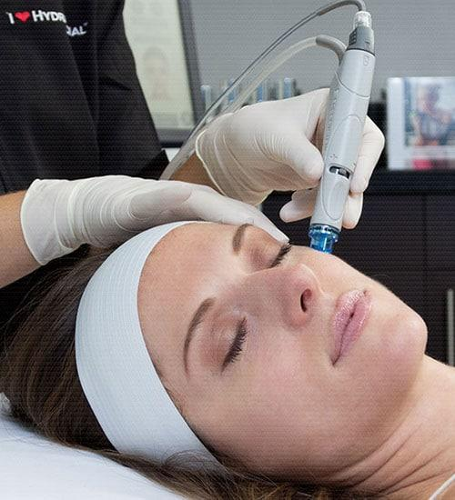 Hydra Facial treatment Tuggerah Central Coast